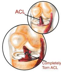 The Anterior Cruciate Ligament