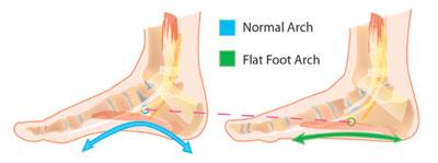 Adult flatfeet and Orthotic Support