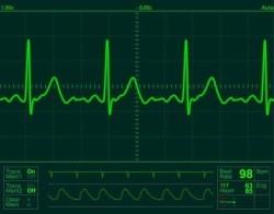 heartmonitor