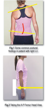 http://www.theamericanchiropractor.com/images/postural.jpg