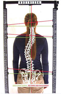 http://www.theamericanchiropractor.com/images/spine.jpg