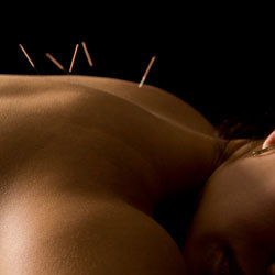Acupuncture and Massage in Chiropractic—Is It Right for Your Practice?