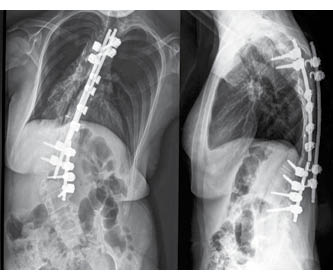 New Hope for Scoliosis Sufferers – A Holistic Approach