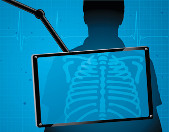 Digital X-ray Solutions for Chiropractic