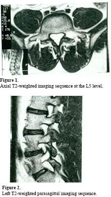 spondylolysisorlisthesis